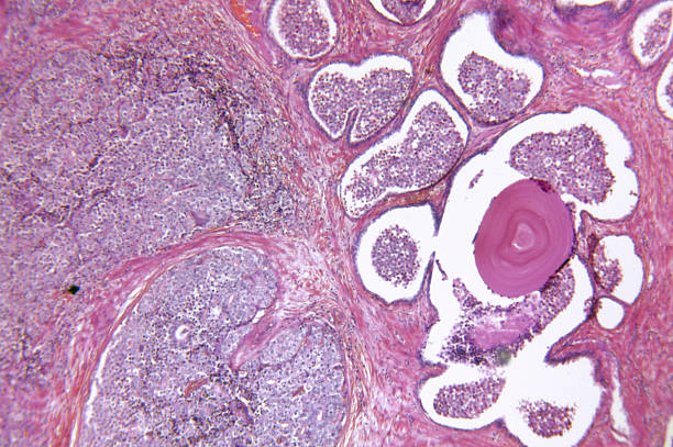 A prostate gland adenocarcinoma Microscopic photo of a professionally prepared slide demonstrating the cellular structure of the object. light micrograph stock pictures, royalty-free photos & images