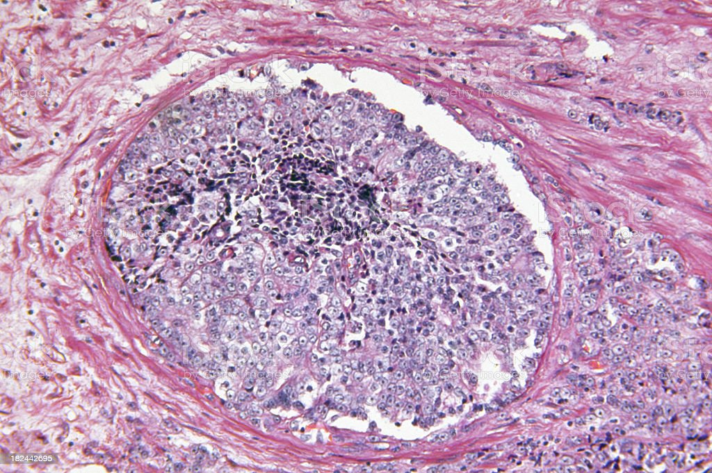 Prostate Gland Adenocarcinoma stock photo