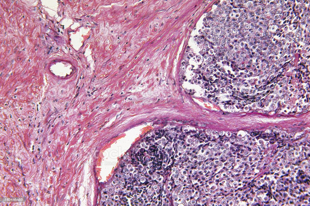 Glândula Próstata Adenocarcinoma - foto de acervo