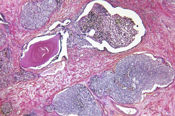 Prostate Gland Adenocarcinoma