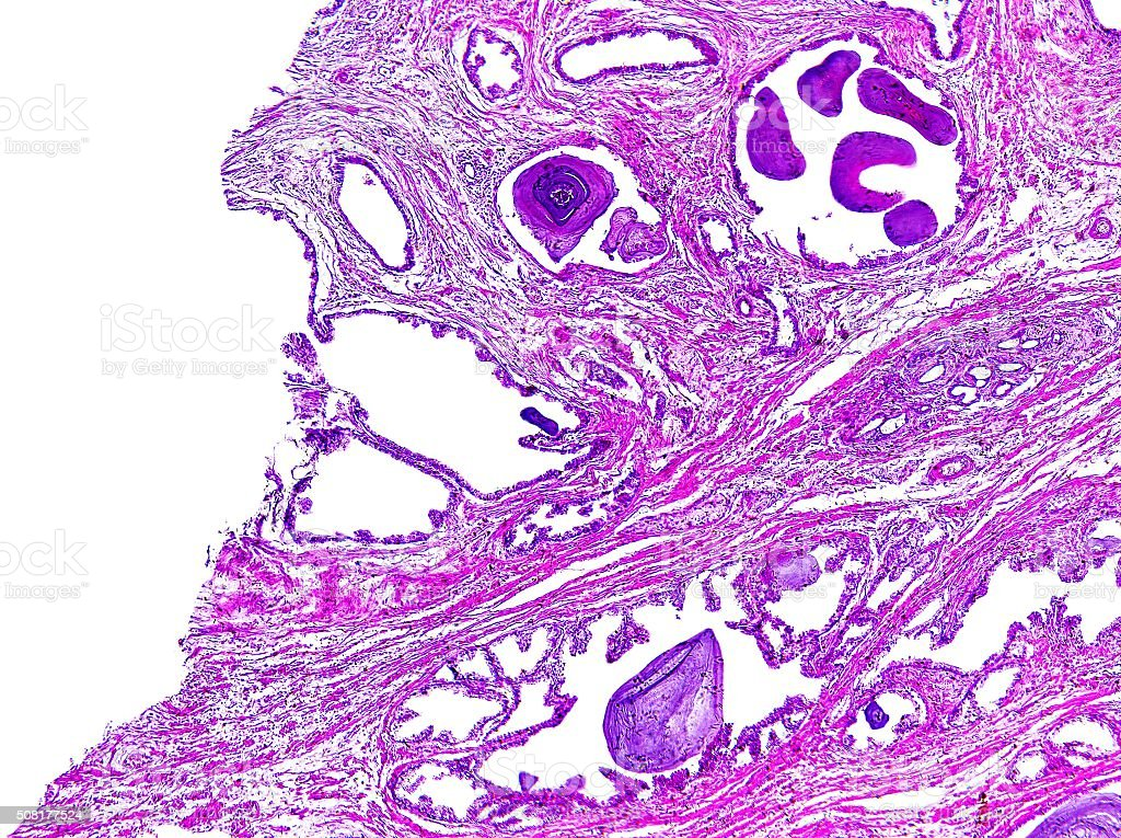 Prostate hypertrophy of a human stock photo