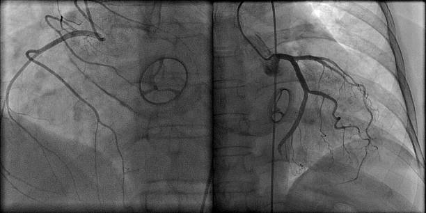 Prosthetic heart valve and contrasted coronary arteries on roentgenogram Prosthetic mechanical heart valve on roentgenogram during coronary angiography cusp stock pictures, royalty-free photos & images