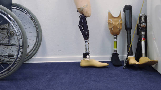 Prosthetic legs in a hospital stock photo