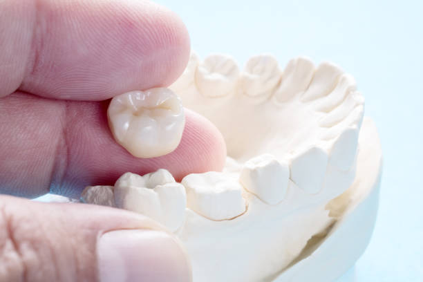 Prosthodontics or Prosthetic Closeup / Prosthodontics or Prosthetic / Crown and bridge equipment and model express fix restoration. tooth crown stock pictures, royalty-free photos & images