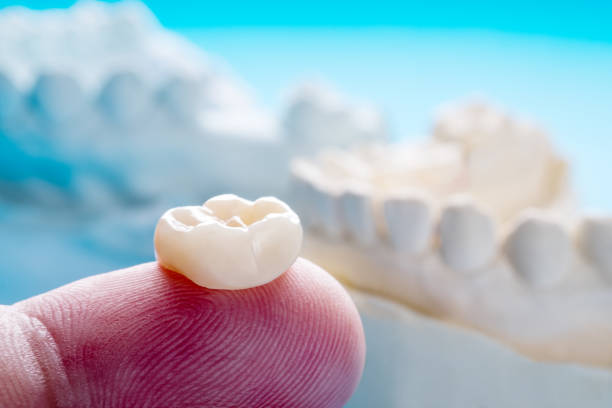 Prosthodontics or Prosthetic Closeup / Prosthodontics or Prosthetic / Single teeth crown and bridge equipment model express fix restoration. tooth crown stock pictures, royalty-free photos & images
