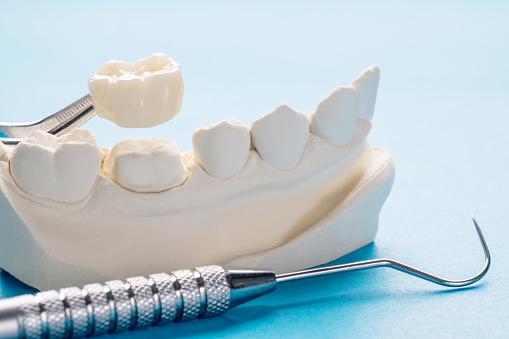 Closeup / Prosthodontics or Prosthetic / Single teeth crown and bridge equipment model express fix restoration.