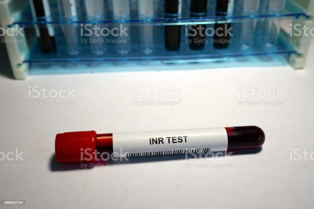 Prothrombin time Blood Test stock photo