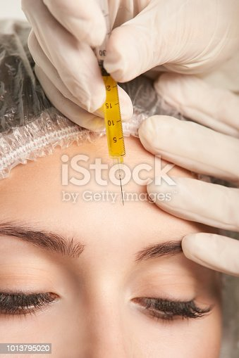 istock prp forehead woman treatment. facial cosmetology skin therapy, Girl face rejuvenation 1013795020