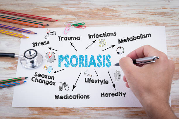 Psoriasis-Konzept. Diagramm mit Keywords und Symbole – Foto