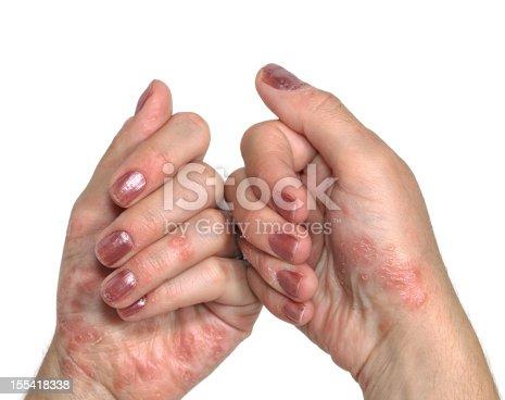 Psoriasis, dermatologic diseases.