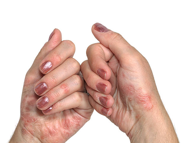 Psoriasis Hand Psoriasis, dermatologic diseases. psoriasis stock pictures, royalty-free photos & images