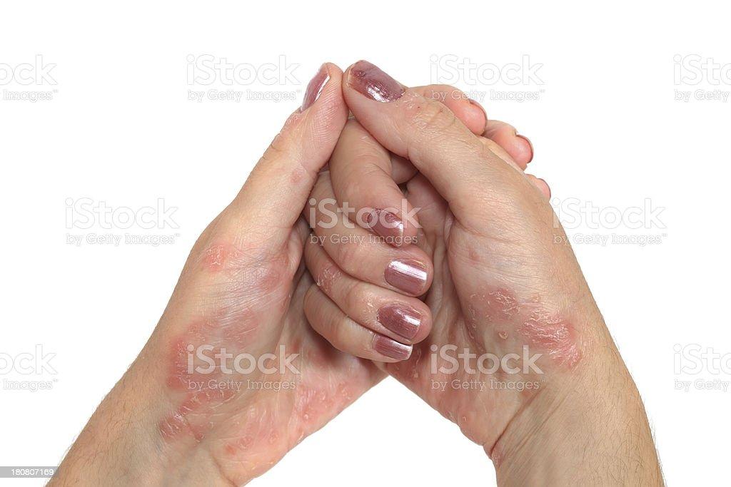 Psoriasis Hand royalty-free stock photo