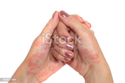 istock Psoriasis Hand 180807169