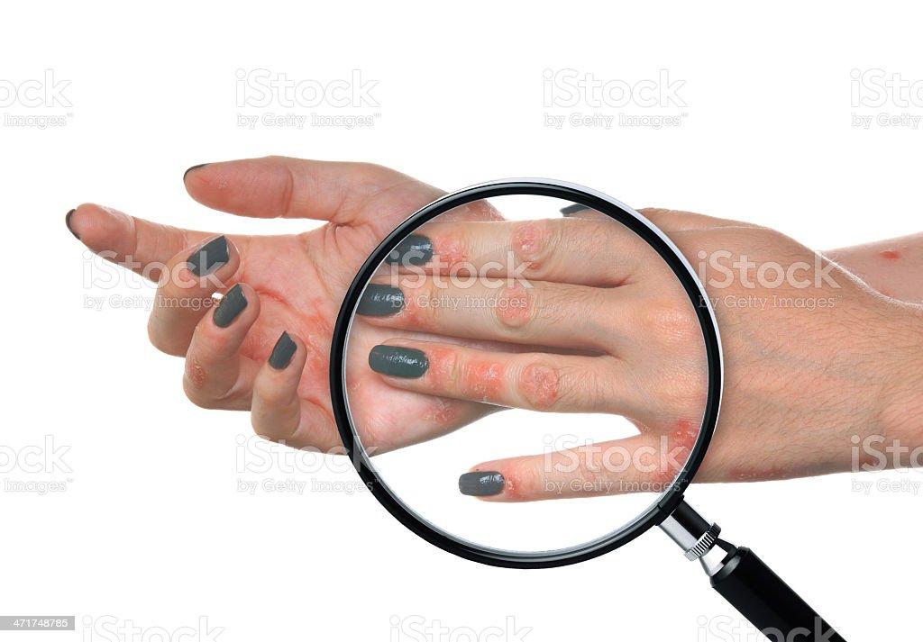 Psoriasis Hand stock photo