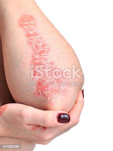 istock Psoriasis Hand 472082091