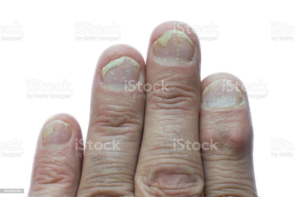 schuppenflechte fingernägel