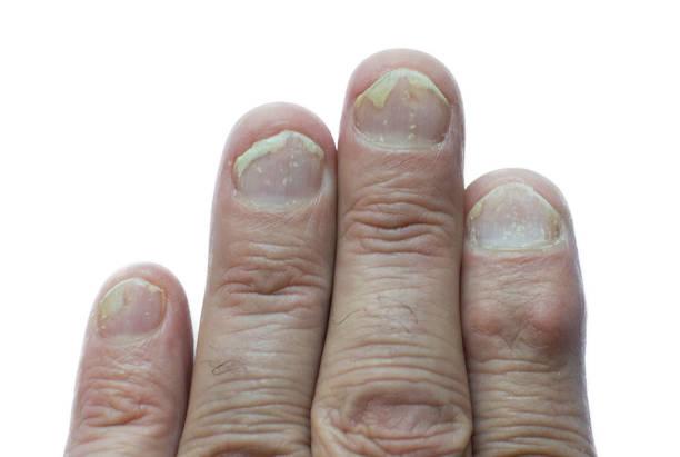 psoriasis des ongles - psoriasis photos et images de collection