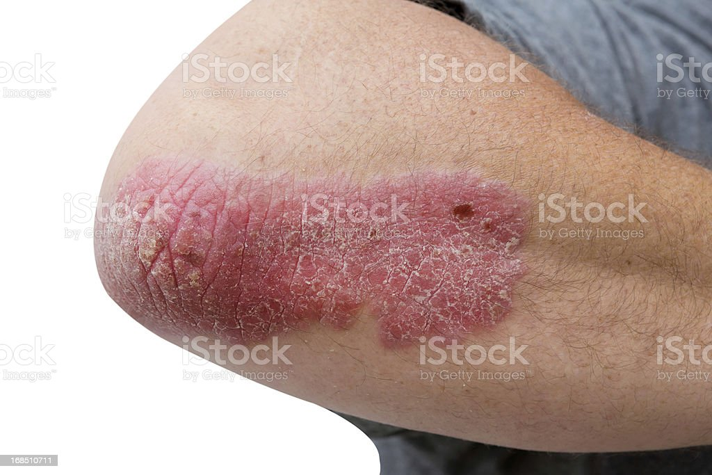 psoriasis on a mid age mans  elbow stock photo