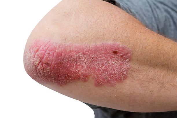 psoriasis sur un milieu âge homme de coude - psoriasis photos et images de collection