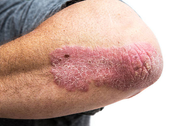 psoriasis on a mid age mans  elbow psoriasis on a mid age mans elbow. Not isolated.  psoriasis stock pictures, royalty-free photos & images