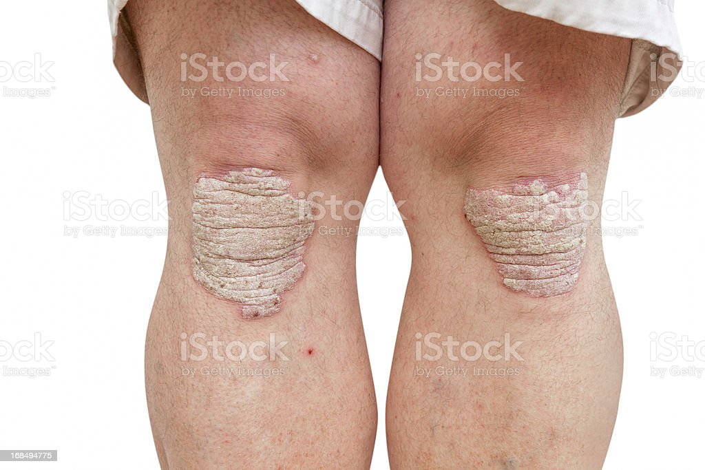 psoriasis on a mid age mans knees stock photo