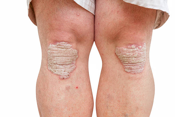 psoriasis sur un milieu âge homme, les genoux - psoriasis photos et images de collection