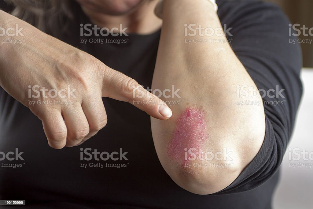Psoriasis on elbow royalty-free stock photo