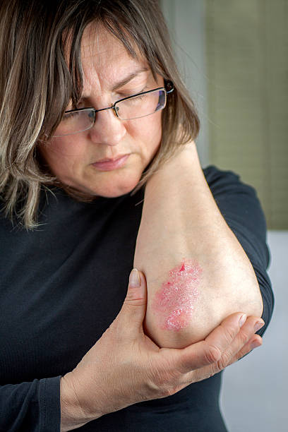 Psoriasis on elbow Woman with psoriasis. Problems with skin psoriasis stock pictures, royalty-free photos & images