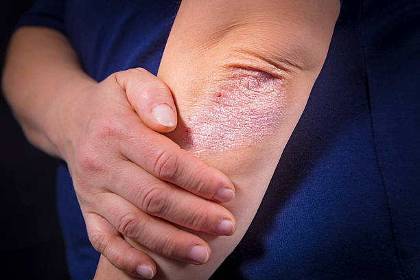 psoriasis on elbow - dry stock photos and pictures