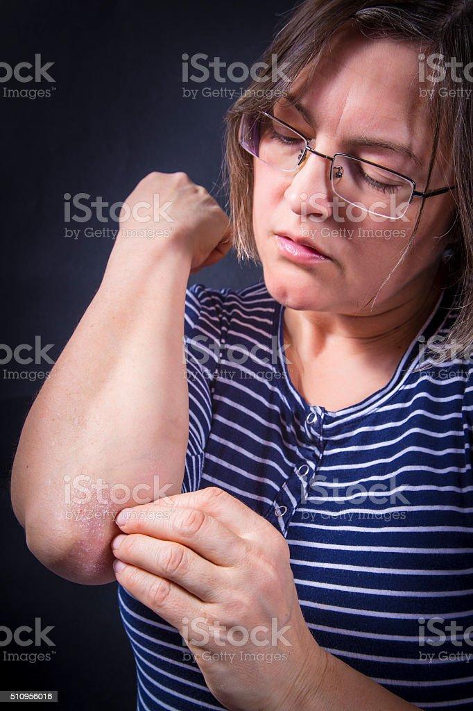 Psoriasis on elbows stock photo