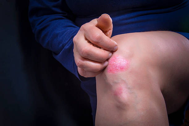 le psoriasis sur le genou - plaque rouge peau photos et images de collection