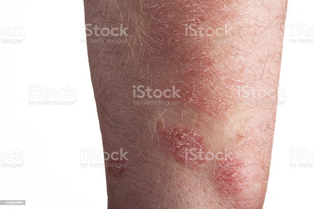 Psoriasis on the arm royalty-free stock photo