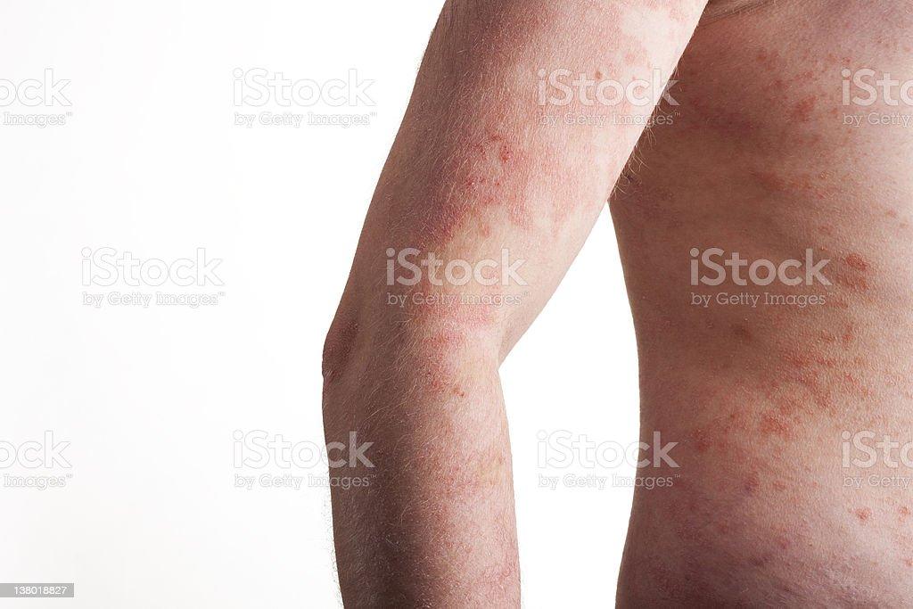 Psoriasis on the body stock photo