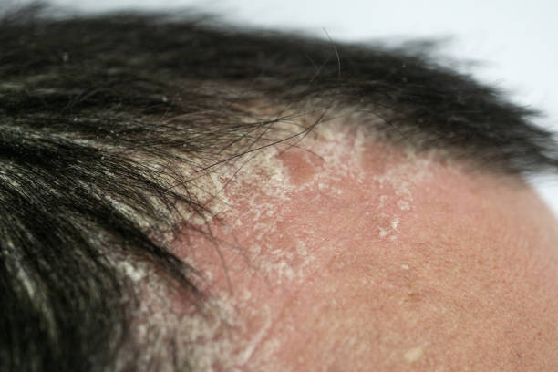psoriasis on the hairline and on the scalp-close up, dermatological diseases, skin problems psoriasis on the hairline and on the scalp-close up, dermatological diseases, skin problems. human scalp stock pictures, royalty-free photos & images