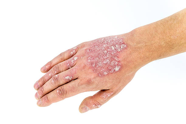 psoriasis on the hand isolated on white - psoriasis photos et images de collection