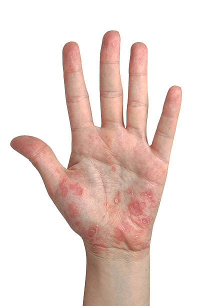 psoriasis main ouverte - tache peau photos et images de collection