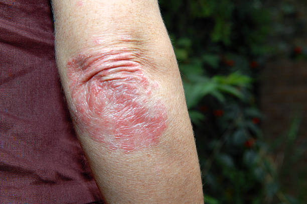 Psoriasis  psoriasis stock pictures, royalty-free photos & images
