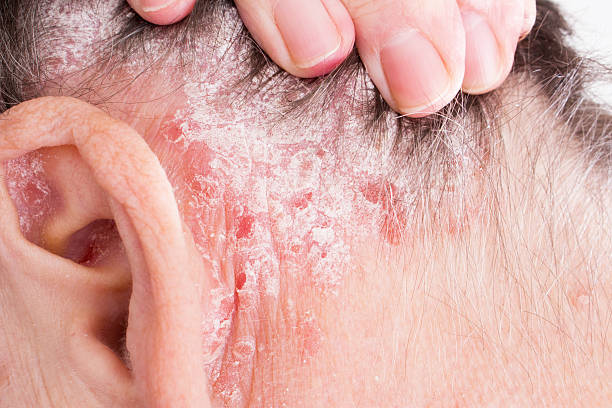 Psoriasis, psoriatic skin disease in hair Psoriasis Vulgaris, psoriatic skin disease in hair, skin patches are typicaly red, itchy, and scaly, macro with narrow focus psoriasis stock pictures, royalty-free photos & images