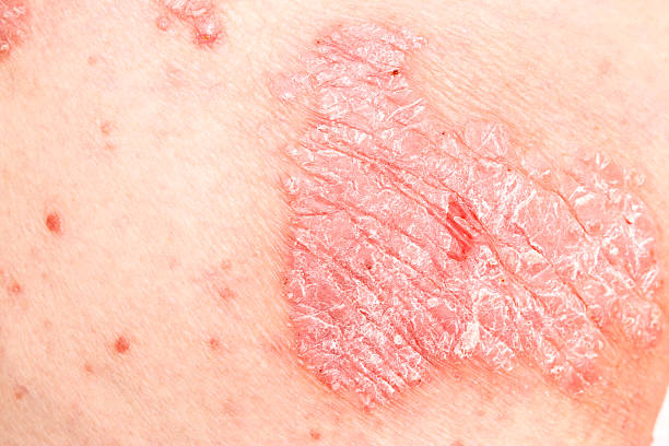 Psoriasis, psoriatic skin disease Detail of Psoriasis Vulgaris, skin disease psoriasis stock pictures, royalty-free photos & images