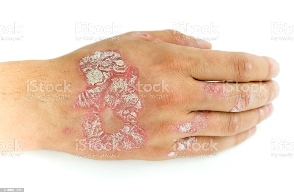 Psoriasis vulgaris and fungus on the man hand and fingers with plaque, rash and patches, isolated on white background. Autoimmune genetic disease. stock photo