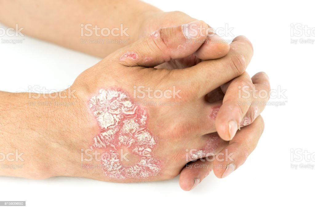 Psoriasis vulgaris on the male hands with plaque, rash and patches, isolated on white background. Autoimmune  genetic disease. stock photo