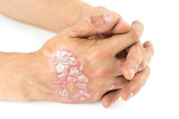 psoriasis vulgaire sur les mains mâles avec plaque, des éruptions cutanées et des correctifs, isolés sur fond blanc. maladies génétiques auto-immunes. - psoriasis photos et images de collection