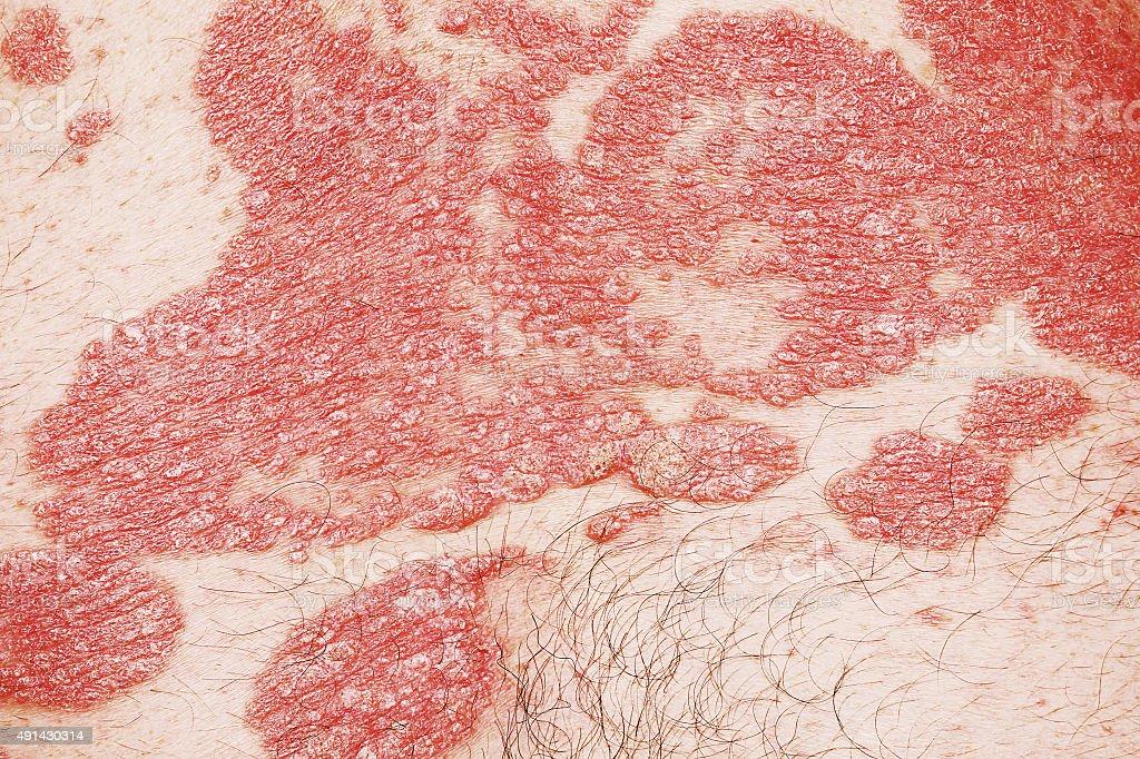 Psoriasis vulgaris stock photo
