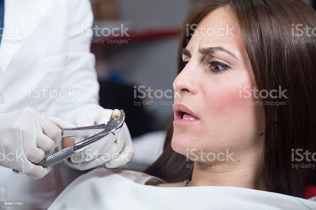 Pulling out tooth stock photo