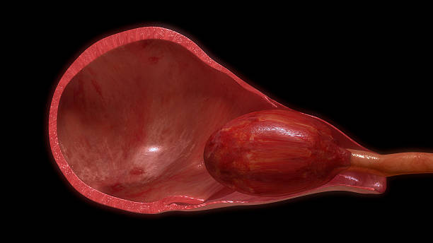 pulling placenta out of uterus - placenta stock photos and pictures