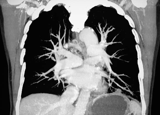 pulmonary artery CT Bild – Foto