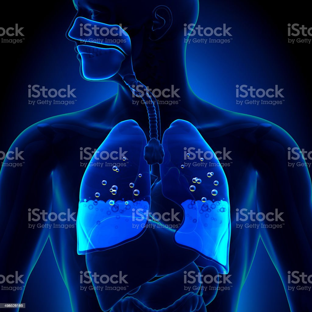 Pulmonary Edema - Water in Lungs stock photo