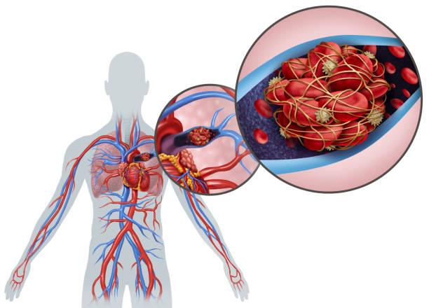 Pulmonary Embolism Anatomy stock photo
