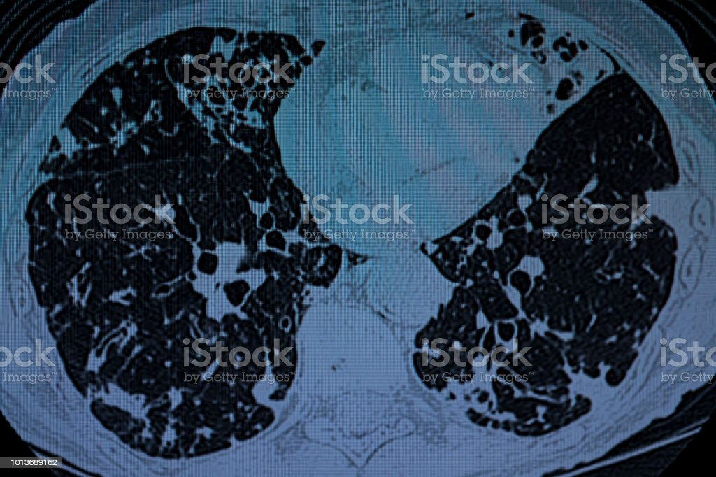 Pulmonary TB and Bronchiectasis stock photo