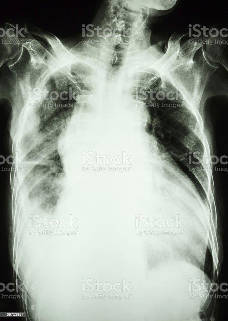 Pulmonary tuberculosis and right lung effusion stock photo